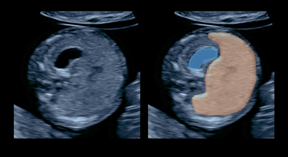 Anatómia bruška v 12. tg – modrá farba znázorňuje žalúdok, hnedá pečeň